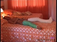 Girl with two legs in plaster masturbates in a hotel
